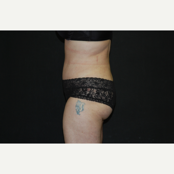 35-44 year old woman treated with Tummy Tuck after 3076458