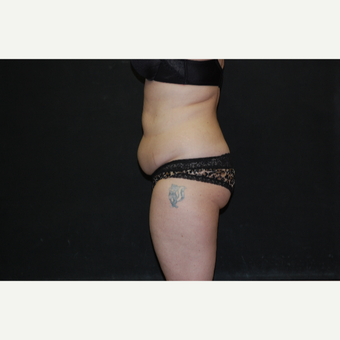 35-44 year old woman treated with Tummy Tuck before 3076458