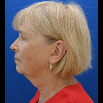 55-64 year old woman treated for SMAS Facelift
