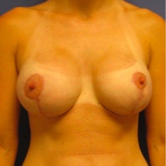 25-34 year old woman treated with Breast Lift with Implants after 2508695