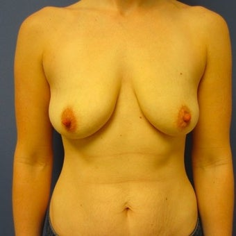 25-34 year old woman treated with Breast Lift with Implants before 2508695