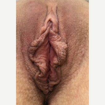35-44 year old woman treated with Labiaplasty before 3628483
