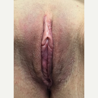 35-44 year old woman treated with Labiaplasty after 3628483