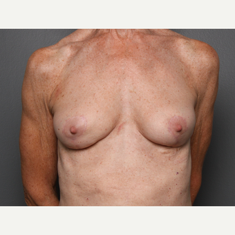 Breast Fat Transfer after 3804373