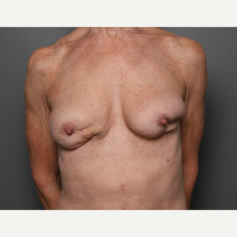 Breast Fat Transfer before 3804373