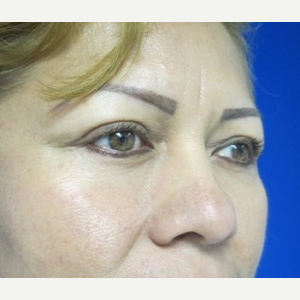 Eyelid Surgery after 3164329