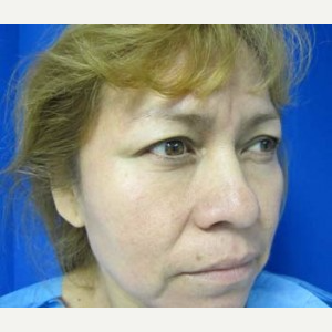 Eyelid Surgery before 3164329