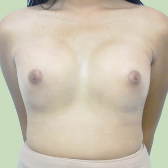MTF Breast Augmentation after 2707519