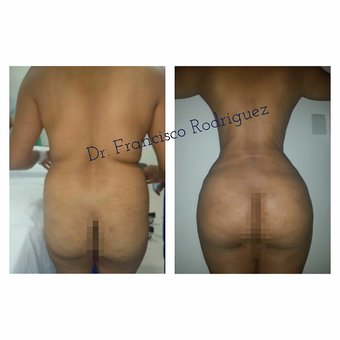 35-44 year old woman treated with Brazilian Butt Lift before 2817906