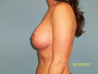 35 Year Old Female Desiring a Breast Lift