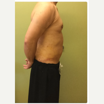 35-44 year old male treated with Smart Lipo after 3098138