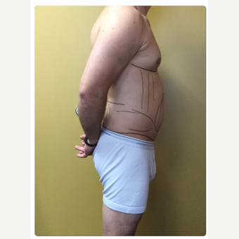 35-44 year old male treated with Smart Lipo before 3098138