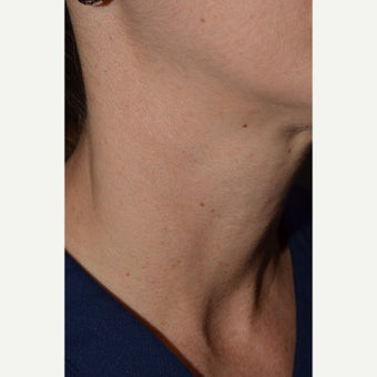 Belotero-Neck Lines after 1832955