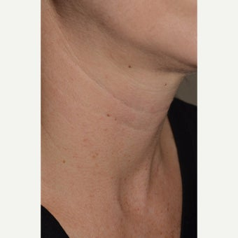 Belotero-Neck Lines before 1832955