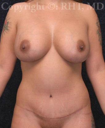 Mommy Makeover (Breast Augmentation, Tummy Tuck, Liposuction hips)