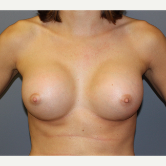 Bilateral Breast Augmentation after 3487069