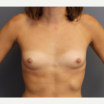 Bilateral Breast Augmentation before 3487069