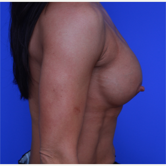 33- year old woman treated with Breast Augmentation before 3652758