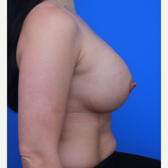33- year old woman treated with Breast Augmentation after 3652758