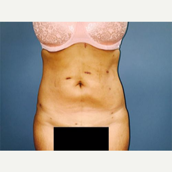 25-34 year old woman treated with Laser Liposuction after 3763970