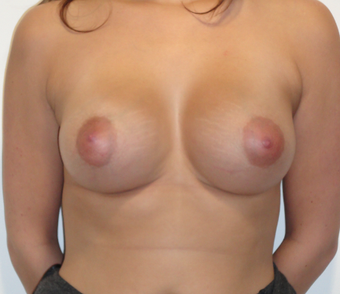 Tubular Breast - Breast Augmentation with Anatomical Teardrop Implants