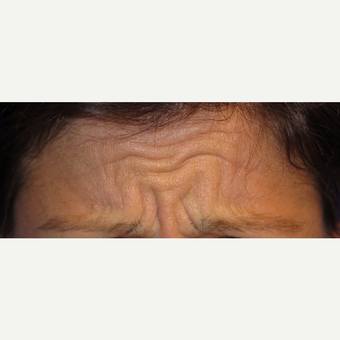 38 year old woman treated with Botox before 3670338