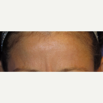 38 year old woman treated with Botox after 3670338