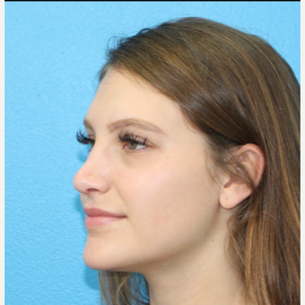 18-24 year old woman treated with Rhinoplasty after 3380262