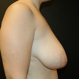35-44 year old woman treated with Breast Lift before 3566163