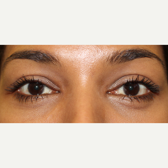 Eye Bag Removal Surgery in Darker Ethnic Skin Types Need Expert Treatment to Avoid Scarring