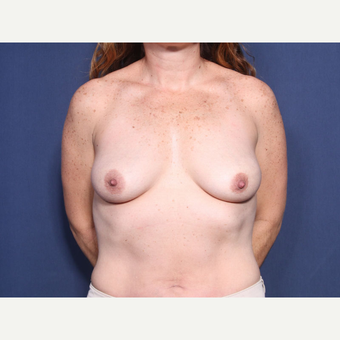 35-44 year old woman treated with Breast Lift with Implants (view 1 of 2) before 3304937