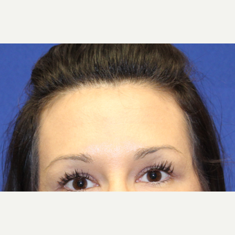 32 year old woman treated with Botox to her forhead after 3737389