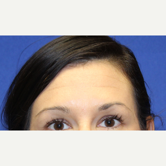 32 year old woman treated with Botox to her forhead before 3737389