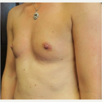 25-34 year old woman treated with Breast Augmentation before 3070065
