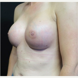 25-34 year old woman treated with Breast Augmentation after 3070065