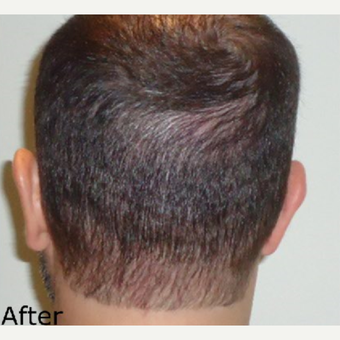 Scalp Micropigmentation Result - scar repair after 3651443
