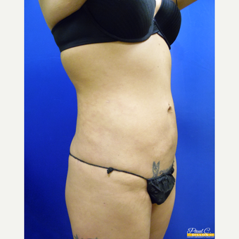 25-34 year old woman treated with Liposuction before 3577265
