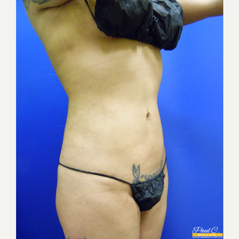 25-34 year old woman treated with Liposuction after 3577265
