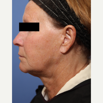 55-64 year old woman treated with Lower Face Lift before 3026937