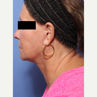 55-64 year old woman treated with Lower Face Lift after 3026937