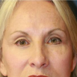 55-64 year old woman treated with Eyelid Surgery after 3560840