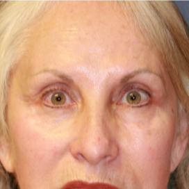 55-64 year old woman treated with Eyelid Surgery before 3560840
