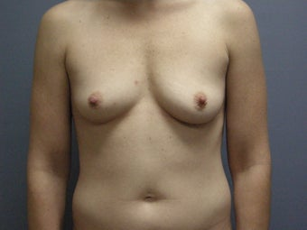 Breast Augmentation For 32-year-old Woman before 1117558