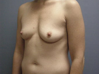 Breast Augmentation For 32-year-old Woman 1117558