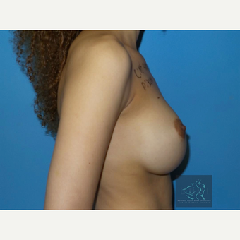 35-44 year old woman treated with Breast Implant Revision before 3094451