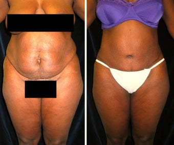 35-44 year old woman treated with Tummy Tuck before 2258251