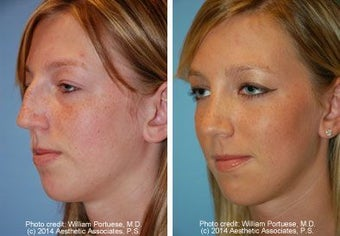 Rhinoplasty before 212349