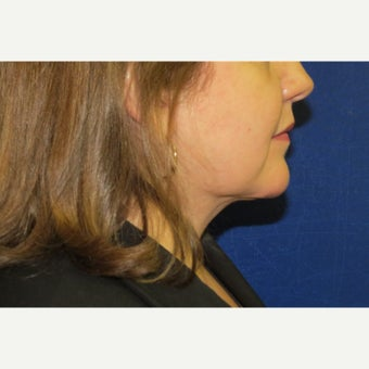 35-44 year old woman treated with Neck Lift 1722475
