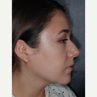 18-24 year old woman treated with Rhinoplasty 1 year post-op before 3708687