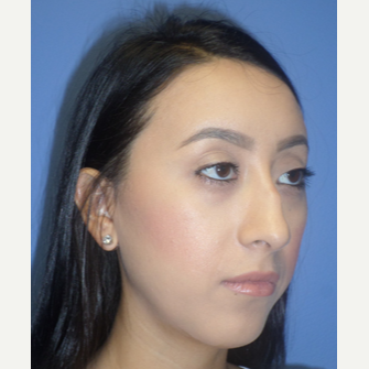 25-34 year old woman treated with Rhinoplasty before 3764683